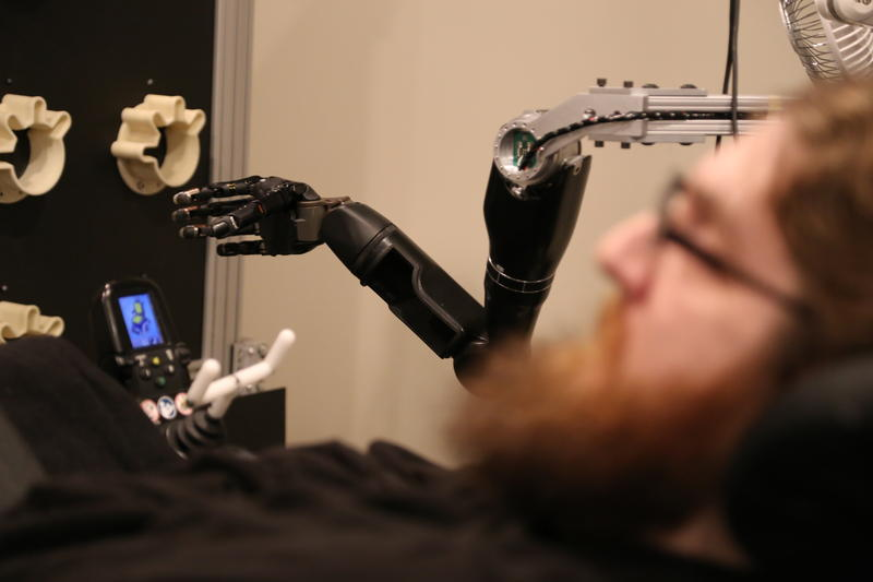 Nathan Copeland, who is functionally paralyzed from the neck down, works with researchers while attempting to move a robotic arm with his mind on Thursday, Oct. 27, 2016.
