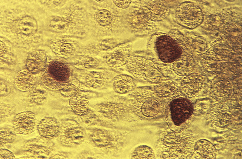 This 1975 microscope image made available by the the Centers for Disease Control and Prevention shows Chlamydia trachomatis bacteria magnified 200X.