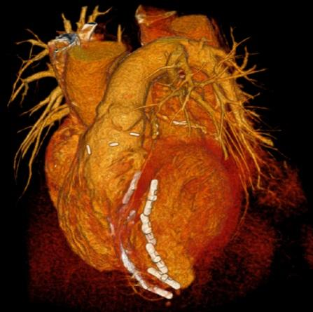 Less Invasvie Ventricular Enhancement uses metal anchors to fold over the scarred portion of the heart and fasten it in place.
