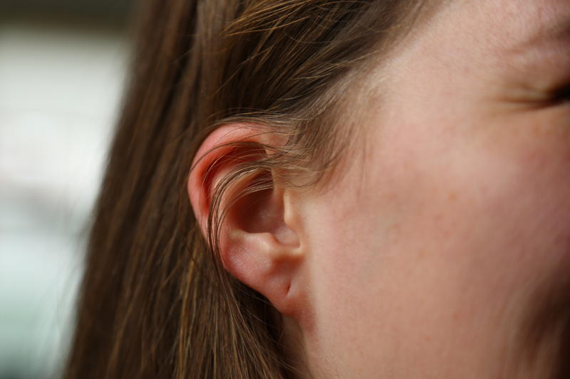 A new study from the University of Pittsburgh links ear lobe shape to serious genetic syndromes.