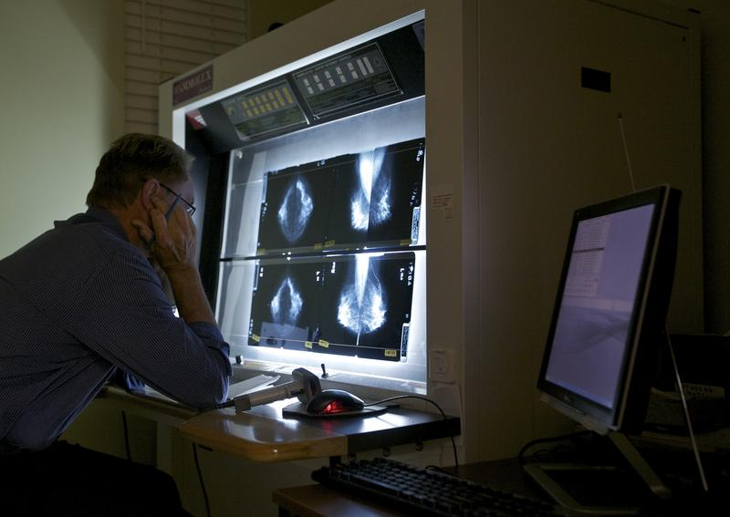 Radiologist Gerald Iba reads a mammogram at The Elizabeth Center for Cancer Detection in Los Angeles on May 6, 2010.