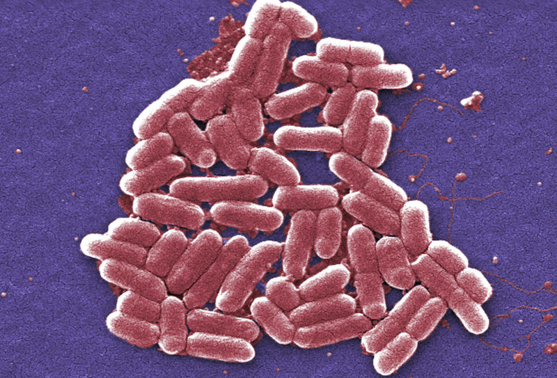 A strain of the Escherichia coli bacteria. E. coli is one of the germs that can cause sepsis.