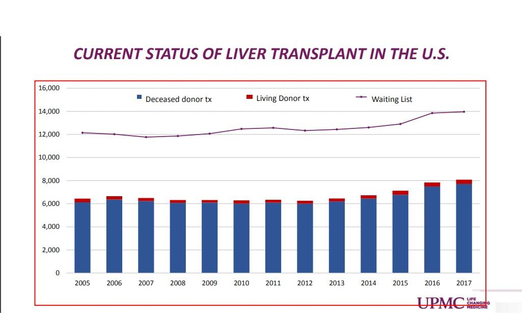 how to get on the liver transplant list