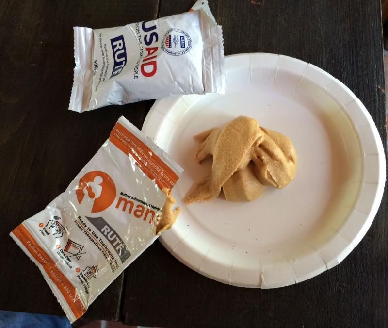 RUTF is a peanut-based paste for severely malnourished kids.