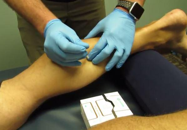 nc court upholds ruling that dry needling is distinct from