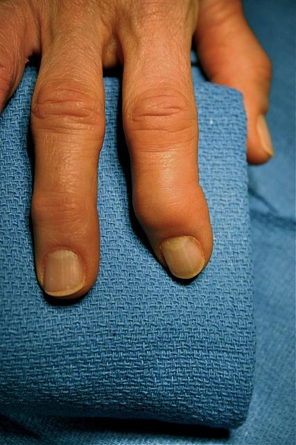 Swelling and deformity of the DIP joint - the end joint of the finger. This is the most common place for osteoarthritis in the hand.