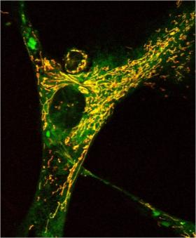 Confocal image (optical slice) of a human fibroblast cell. A fluorescent dye has been added and anything you see as yellow to orange are mitochondria. They are everywhere.