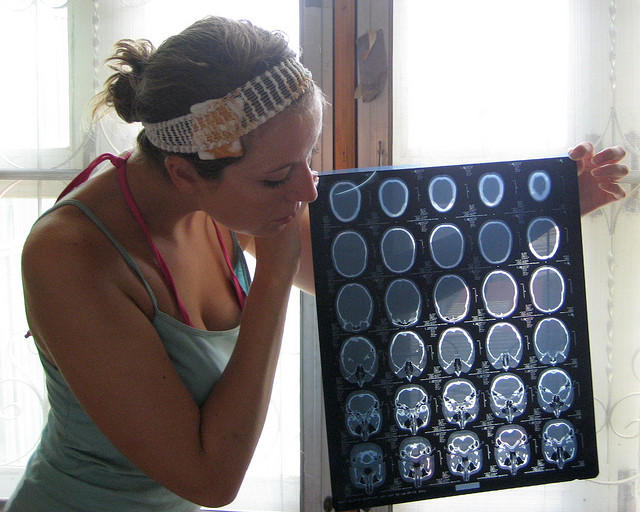 A patient holds up images from a computed tomography scan.