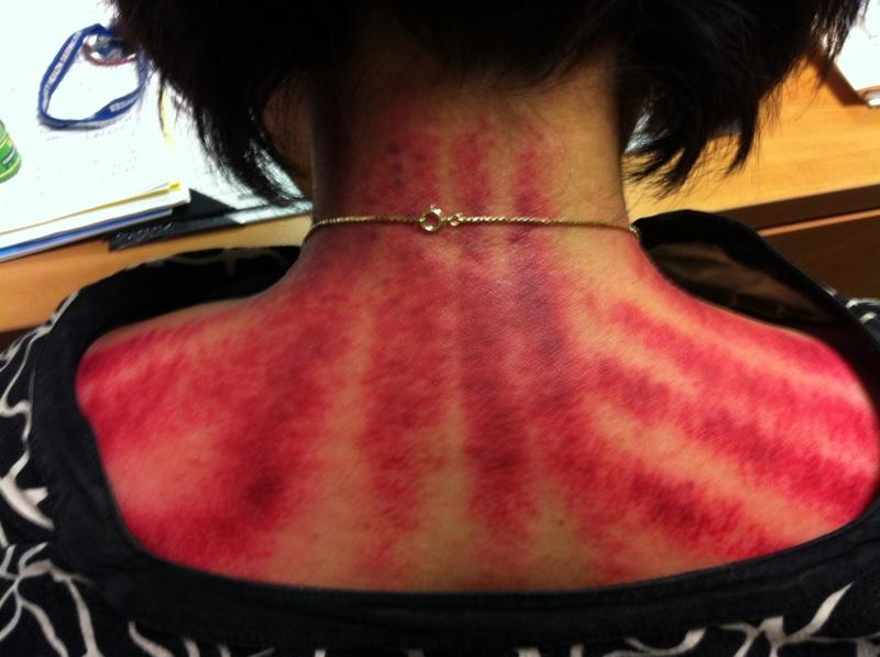 Coining is a treatment in which a lubricated coin is rubbed across the shoulders and back, leaving tiger-like stripes. It's routinely used to treat things like headaches and indigestion. Marks of coining are seen here on a Metta Health Center staff
