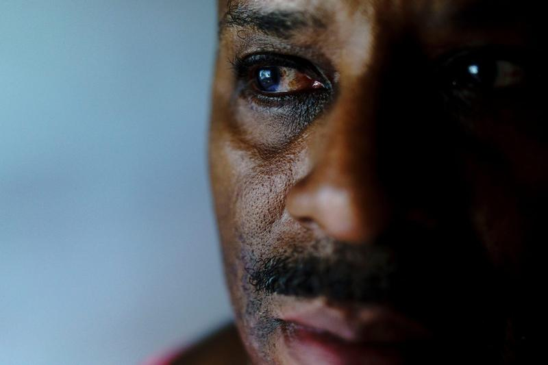 Gregory Matthews, who is partially blind because of glaucoma, uses eyedrops everyday to improve his remaining sight.