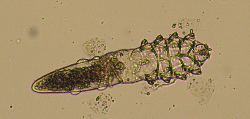 Demodex follicularum in a KOH preparation of skin.