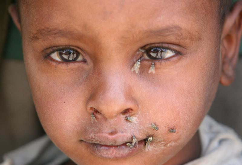 Trachoma, caused by a micro-organism, is highly contagious, spread by eye-seeking flies and through contact with the eye discharge of an infected person. Children and women are most susceptible to the infection.