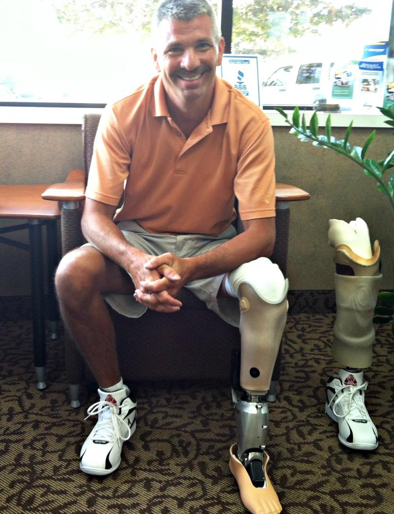 Mike Coon gets acclimated to his new 'bionic' knee Monday in Lansing.
