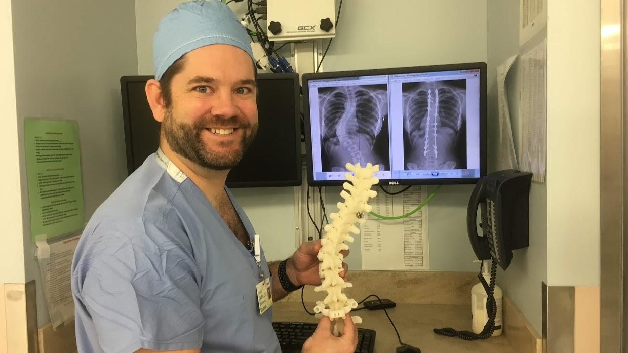 3d Modeling Improves Scoliosis Surgery Wkar Jacie Shirt Dr Joseph Dewitt Holds A Model Of Patient Rishs Spine In Front X Rays Taken Before And After Her