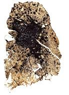 Late stage Black Lung disease.