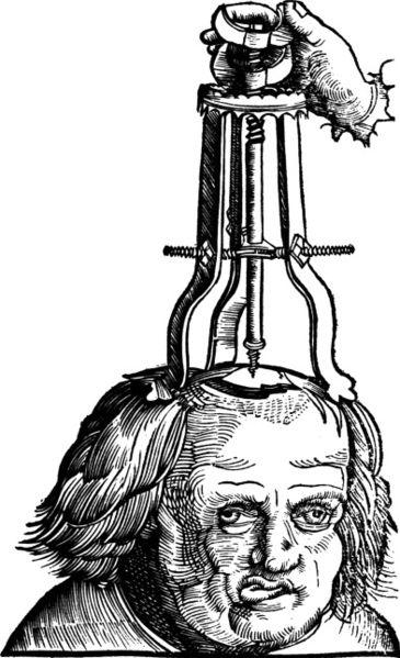 Illustration in a 1517 book showing a then method for treating a depressed skull fracture.