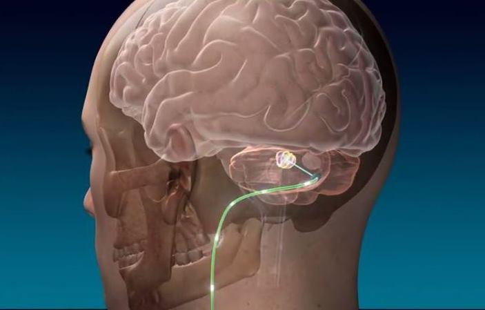 An electrode implanted in a stroke patients cerebellum at the Cleveland Clinic is a medical first, but the latest in a growing list of treatments using deep brain stimulation.