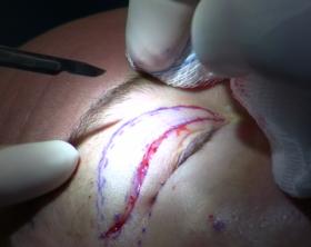 A surgeon begins a upper-eyelid blepharoplasty