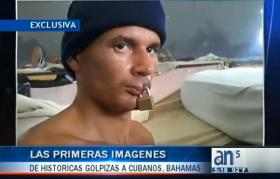 A video broadcast on América Tevé claims to show a Cuban detainee in the Bahamas with a padlock through his lips.