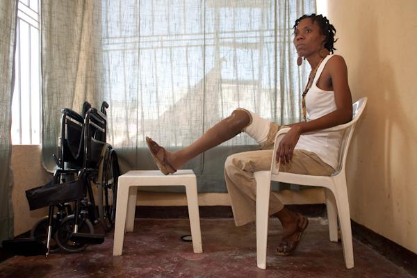 Fabienne Jean sits at home with her prosthetic leg propped up on a coffee table.