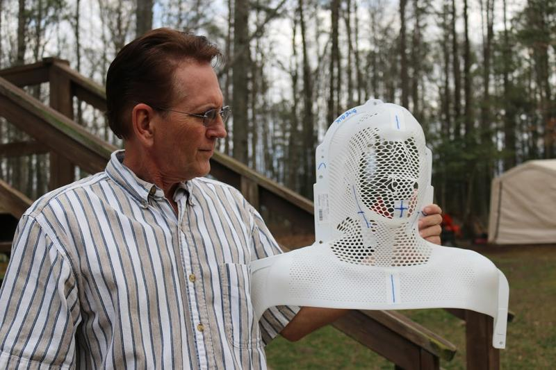 "Keith Hart shows off the molded mask that was bolted down over his head and shoulders during 37 straight days of radiation treatment. ""The very first time they strapped me into that table,"" Keith remembers, ""I was terrified."""