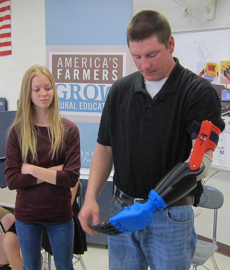 Jake Hubbard puts on his new prosthetic arm, with help from Skylar, his eldest daughter.
