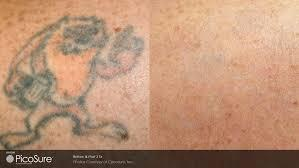 Before and After picture of tattoo removal