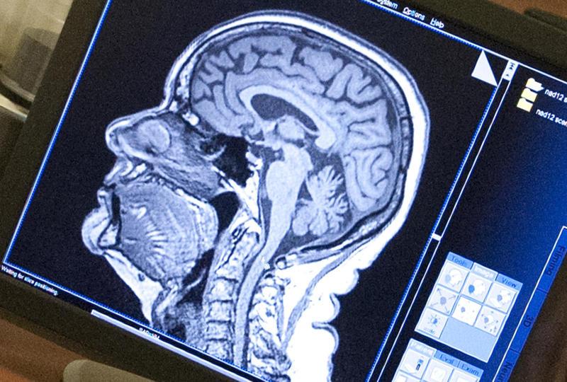 MRI scan on computer.