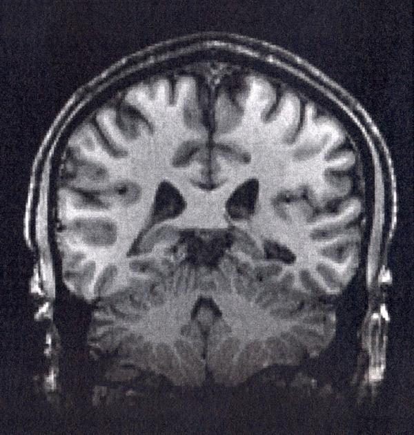 An fMRI brain scan.