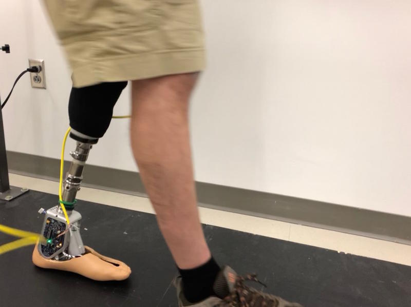Michael Sasser demonstrates the prosthetic ankle in action. The foot rotates up or down depending on the stride to absorb impact and prevent tripping.