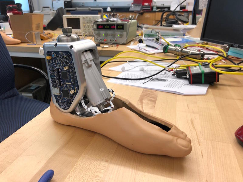 A prosthetic ankle with hydraulics and sensors that can navigate uneven terrain.