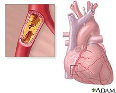 Illustration of hardening of the arteries, or atherosclerosis