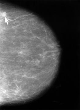 Mammogram showing a small lesion.