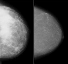 Mammogram shows dense breast tissue on the left, a breast with mostly fatty tissue on the right.