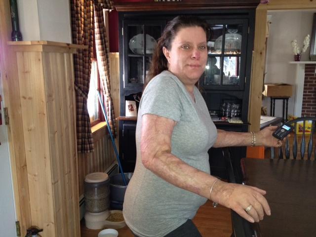 Station Nightclub Fire Survivor, Linda Fisher
