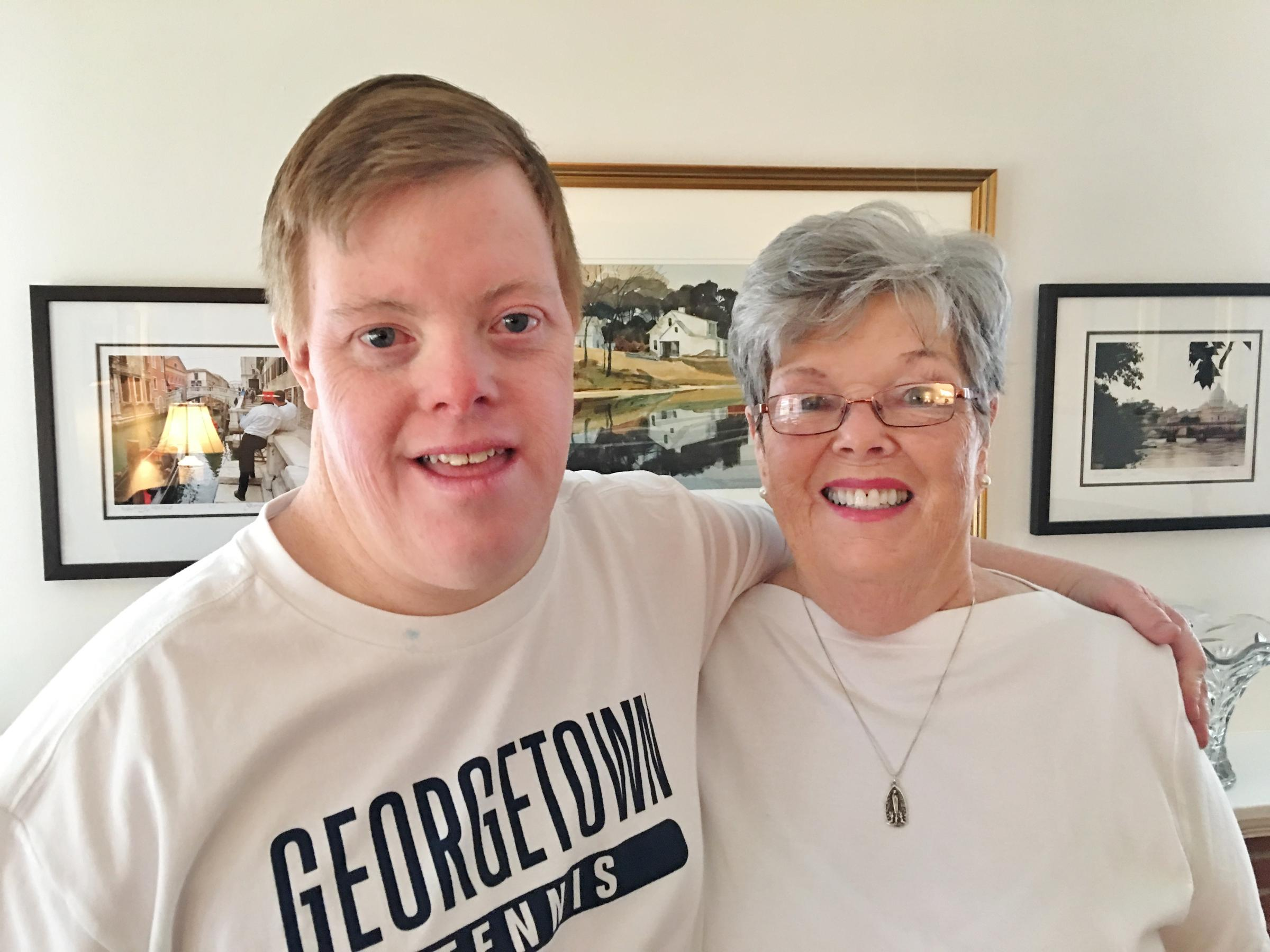 how to work with down syndrome adults