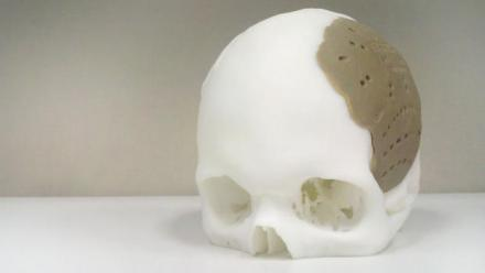 The implant makes up 75 percent of this skulls mass