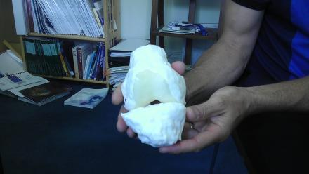 3D printed knee joint created with 3D imaging technology using a patient MRI