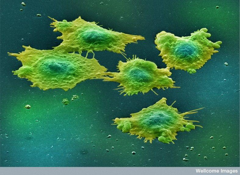 Human colon cancer cells.