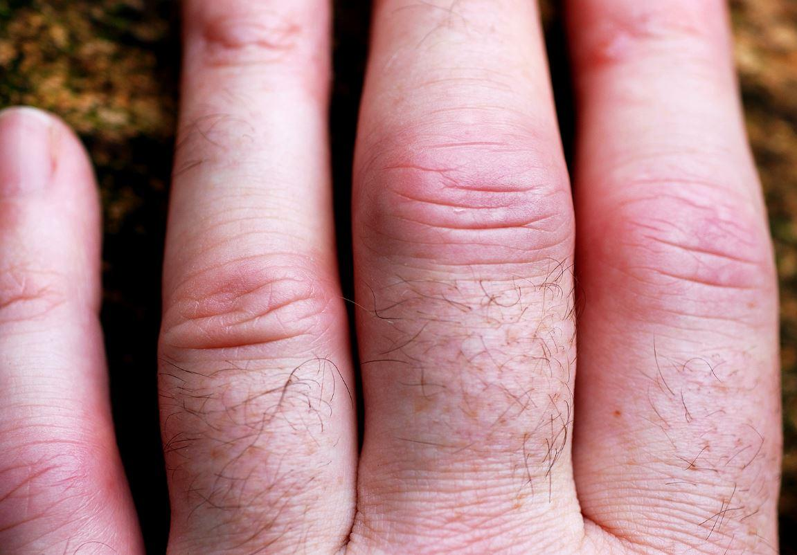 Joint pain isn\'t just for old age; rheumatoid arthritis affects ...