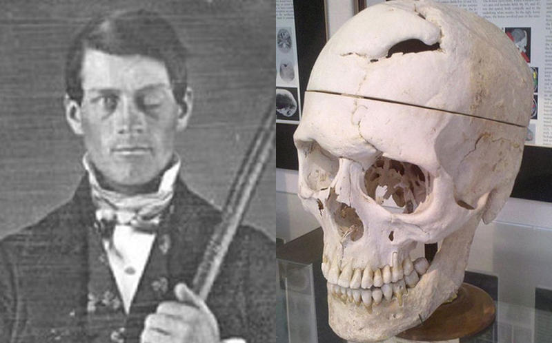 Left: A daguerreotype portrait of brain-injury survivor Phineas P. Gage, holding the tamping iron which injured him. Right: Gage's skull on display at Harvard Medical School.
