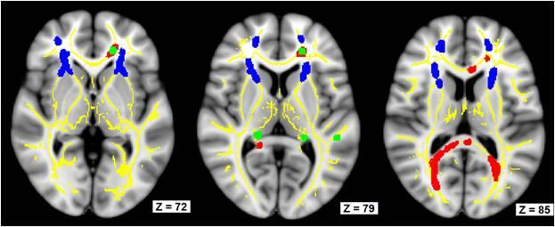 Brain images from the UK study