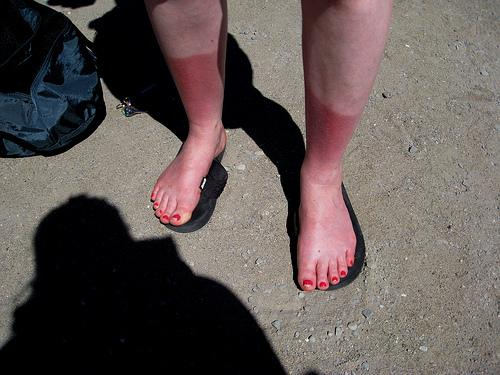 Sunburnt feet after a kayaking trip.