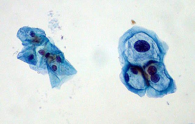 The Human papillomavirus (HPV) found in a Pap smear