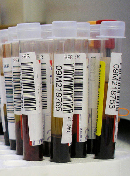 A picture of vials of blood for testing.