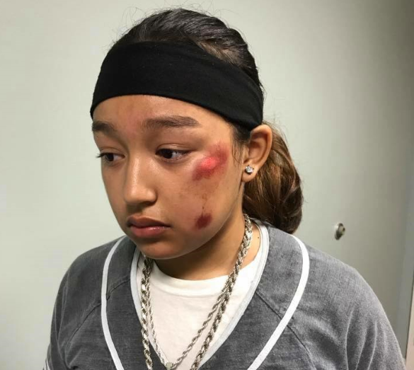 Thirteen year-old Connsuela Bautista after being arrested at her middle school. She says the arrest was aggressive and left her with injuries.