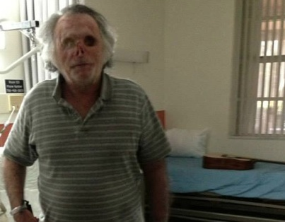 Video One Year After Face Eating Attack Victim Ronald