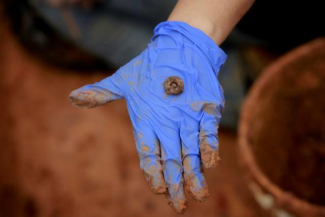 Dr. Kimmerle displays a pants button found in an exhumed grave .