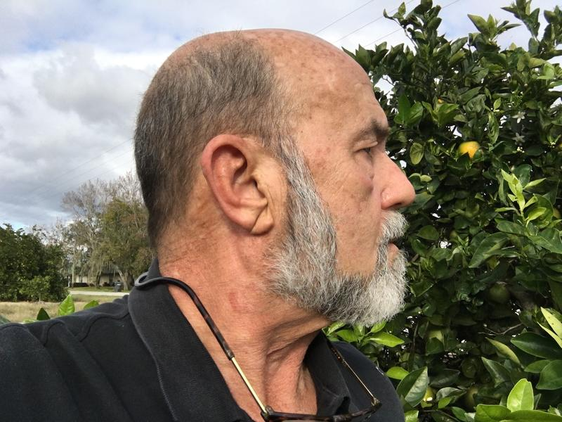 Scott Young looks at a tree with citrus greening in his grove in Alturas. Young says he's had to sell hundreds of acres of groves in recent years due to greening, and only has about 15% of his original land left.