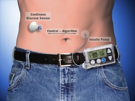 "Medtronic Artificial Pancreas >> Study Shows Progress Towards ""Artificial Pancreas"" | WUSF News"